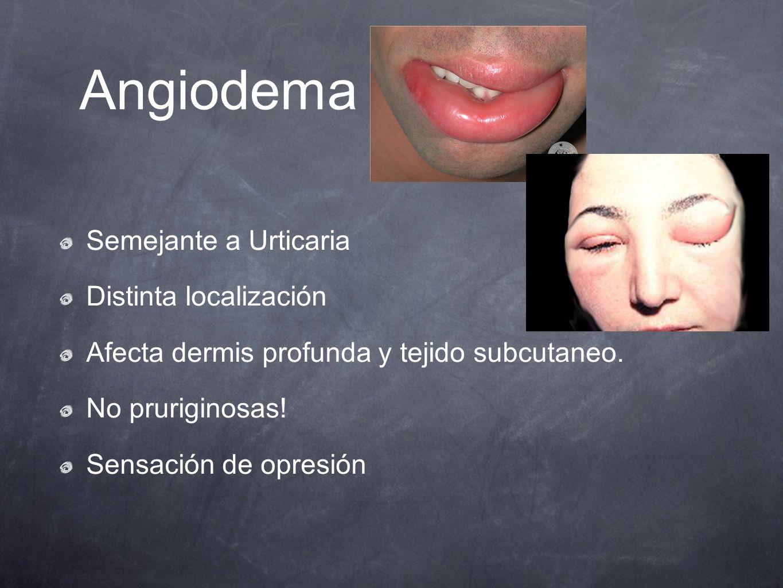 Angiodema Semejante a Urticaria Distinta localización