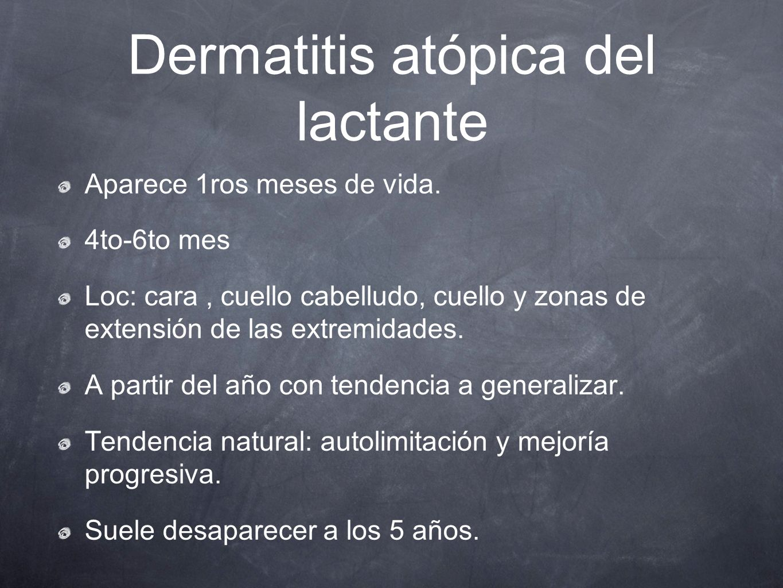 Dermatitis atópica del lactante