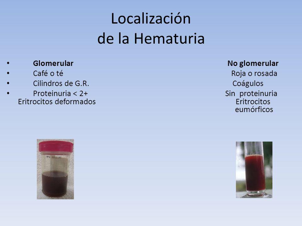 Localización de la Hematuria