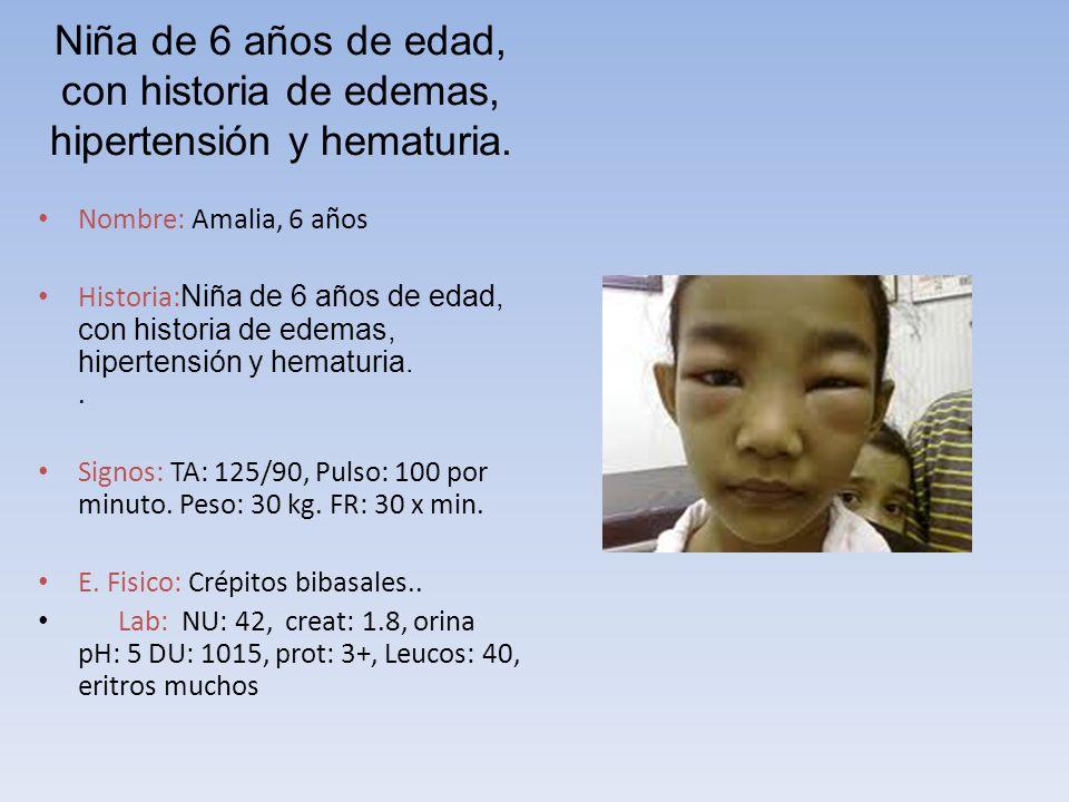 Niña de 6 años de edad, con historia de edemas, hipertensión y hematuria.