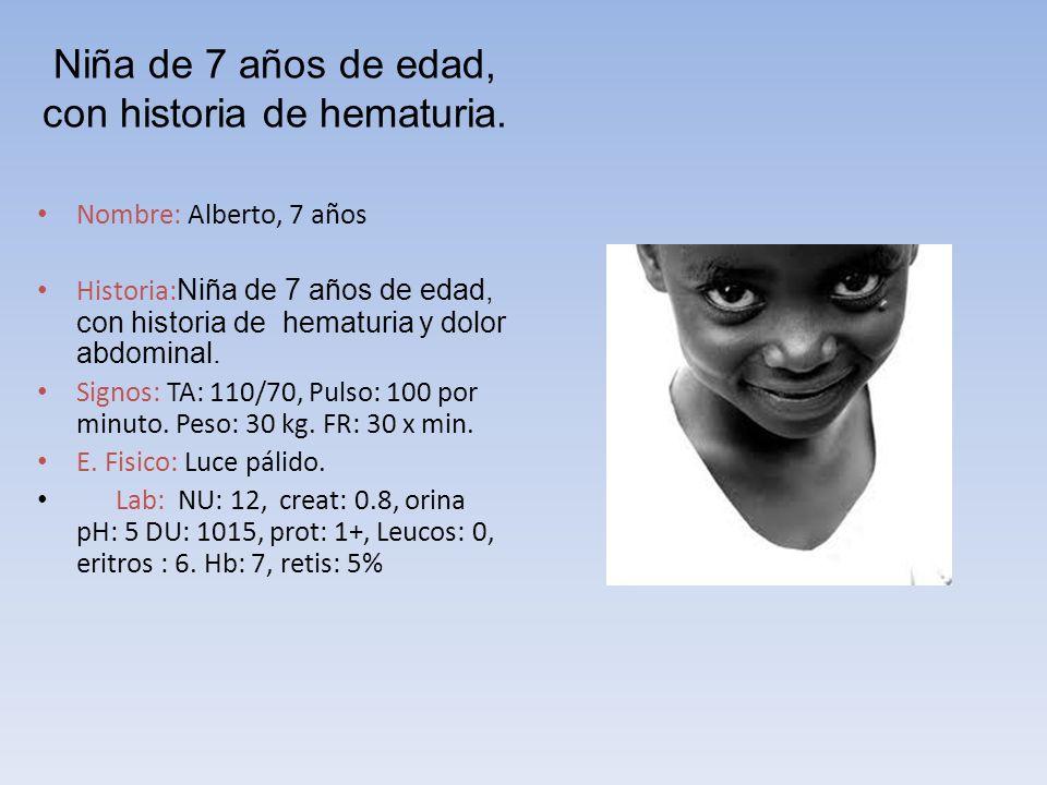 Niña de 7 años de edad, con historia de hematuria.