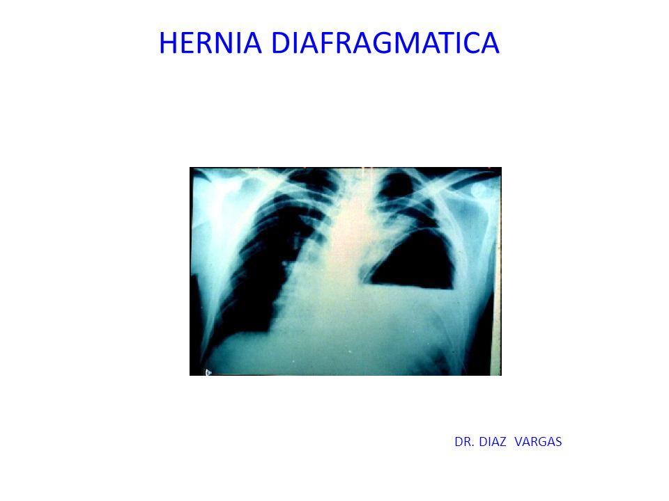 HERNIA DIAFRAGMATICA DR. DIAZ VARGAS
