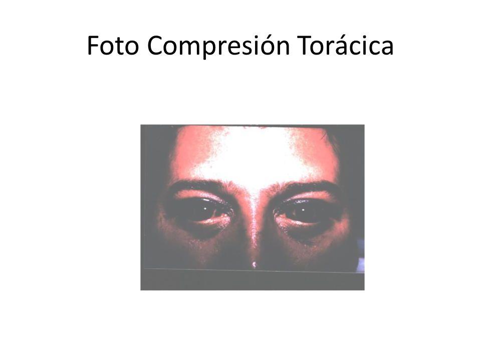 Foto Compresión Torácica