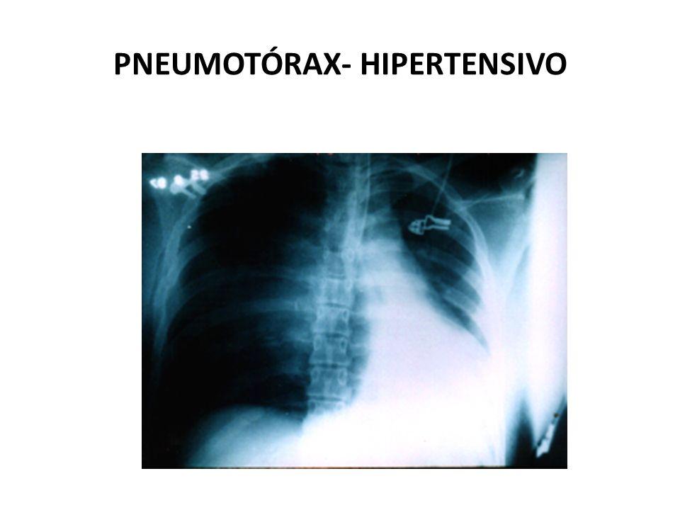 PNEUMOTÓRAX- HIPERTENSIVO