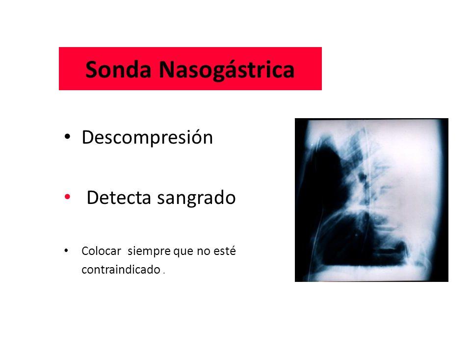 Sonda Nasogástrica Descompresión Detecta sangrado
