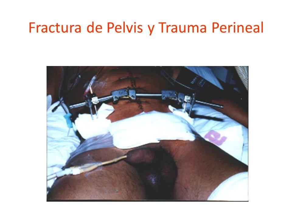 Fractura de Pelvis y Trauma Perineal