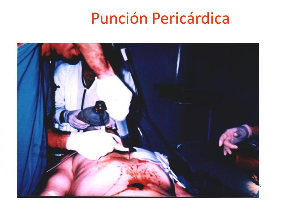 Punción Pericárdica Dr. Diaz vargas
