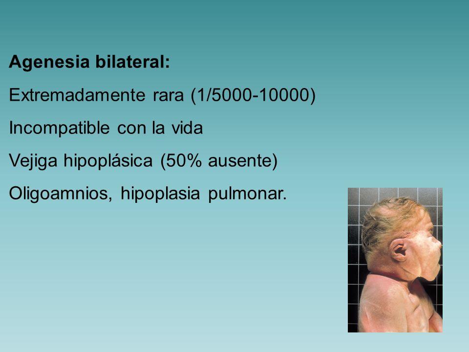 Agenesia bilateral:Extremadamente rara (1/5000-10000) Incompatible con la vida. Vejiga hipoplásica (50% ausente)