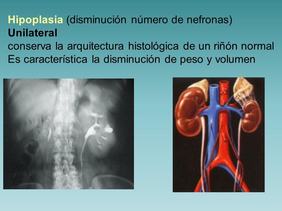 Hipoplasia (disminución número de nefronas)