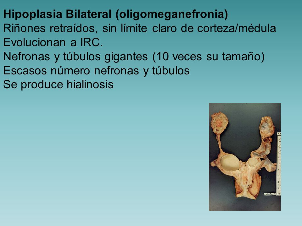 Hipoplasia Bilateral (oligomeganefronia)