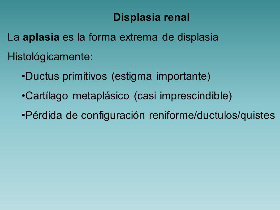 Displasia renal La aplasia es la forma extrema de displasia. Histológicamente: Ductus primitivos (estigma importante)