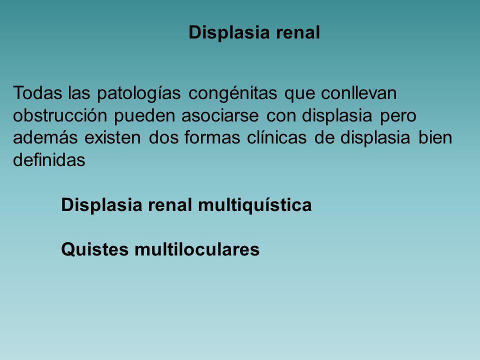 Displasia renal Todas las patologías congénitas que conllevan. obstrucción pueden asociarse con displasia pero.