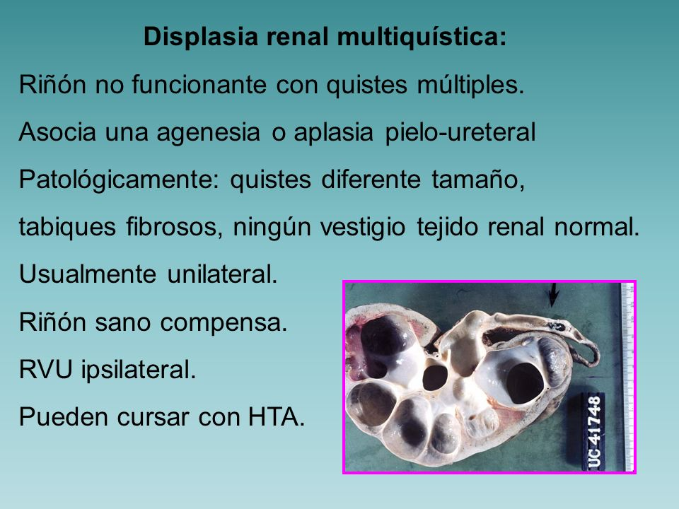 Displasia renal multiquística: