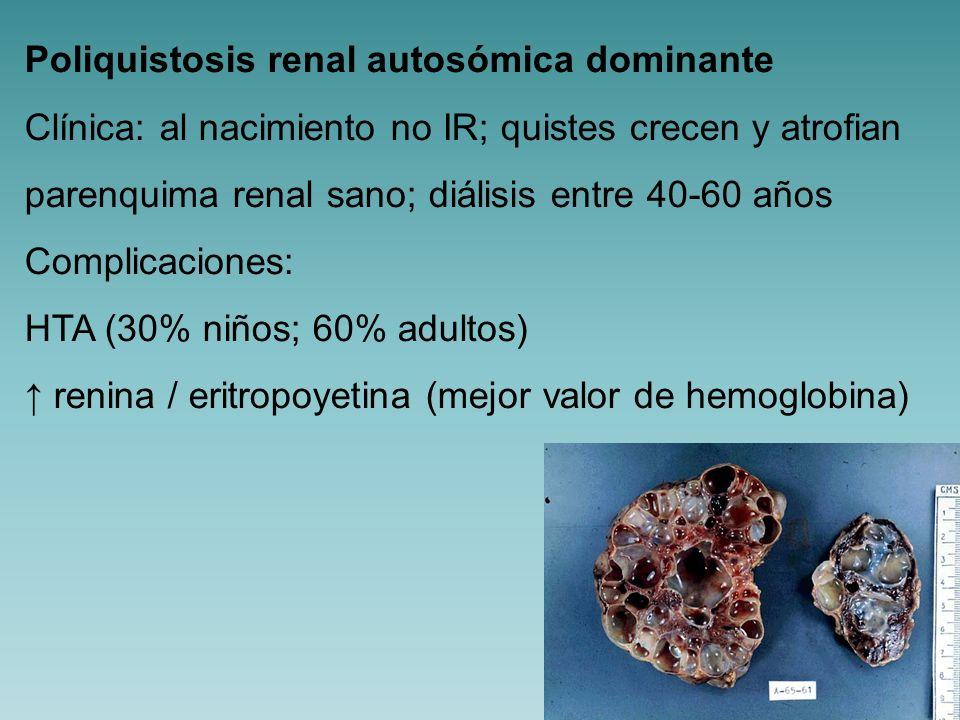 Poliquistosis renal autosómica dominante
