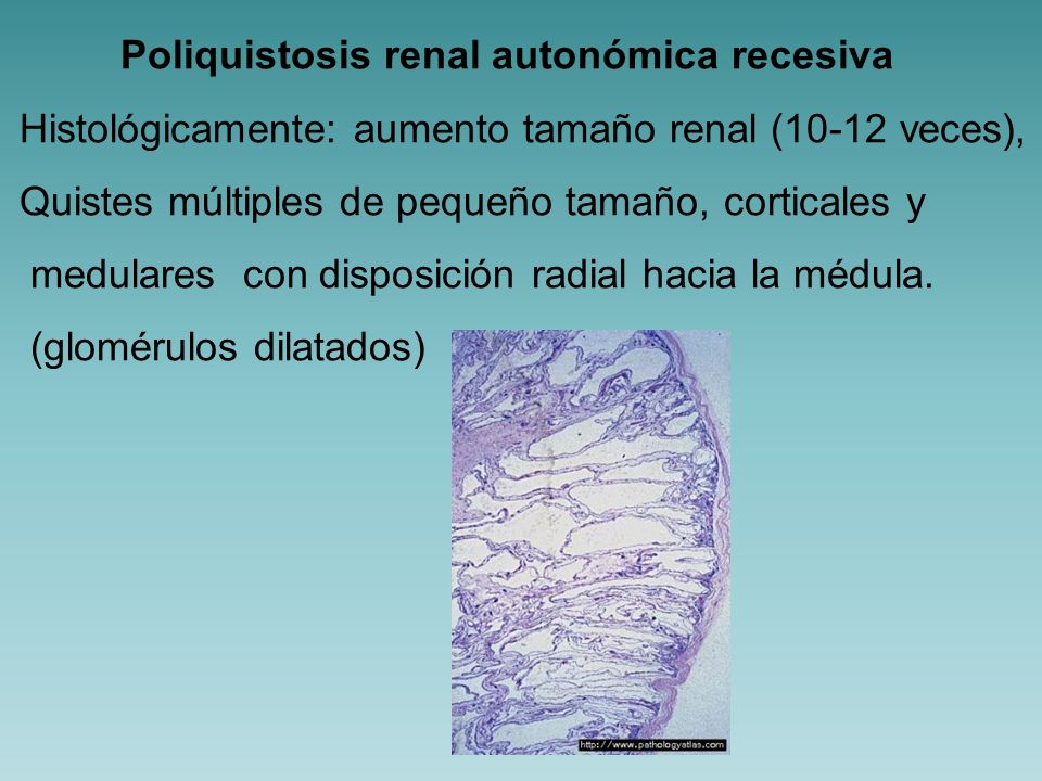 Poliquistosis renal autonómica recesiva