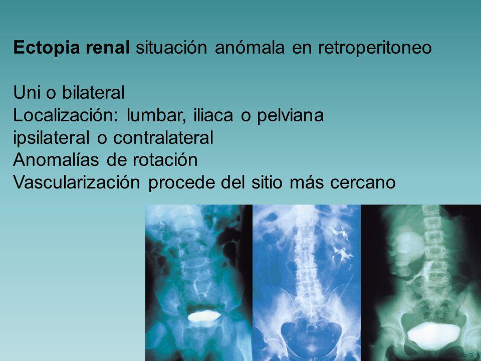 Ectopia renal situación anómala en retroperitoneo