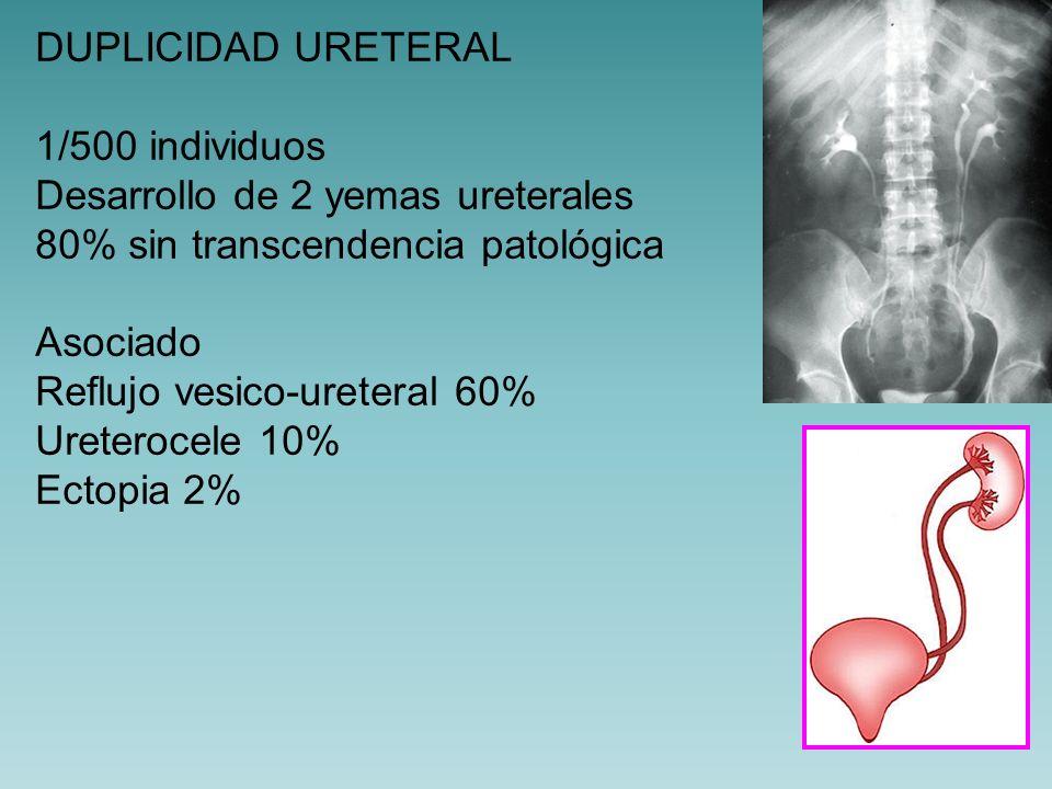 DUPLICIDAD URETERAL 1/500 individuos. Desarrollo de 2 yemas ureterales. 80% sin transcendencia patológica.