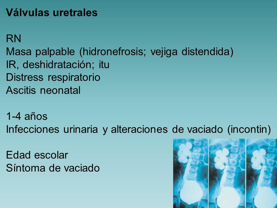 Válvulas uretrales RN. Masa palpable (hidronefrosis; vejiga distendida) IR, deshidratación; itu. Distress respiratorio.