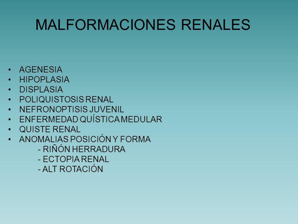 MALFORMACIONES RENALES