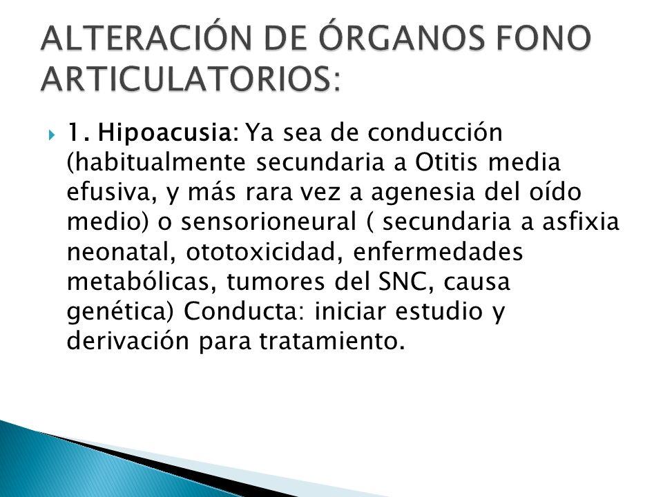 ALTERACIÓN DE ÓRGANOS FONO ARTICULATORIOS:
