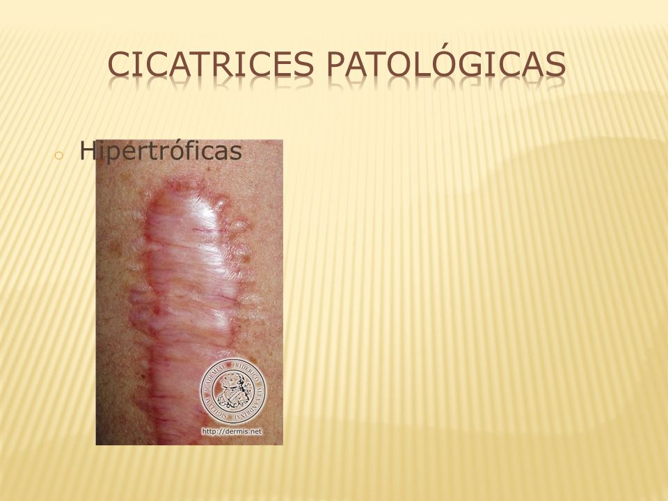 Cicatrices Patológicas