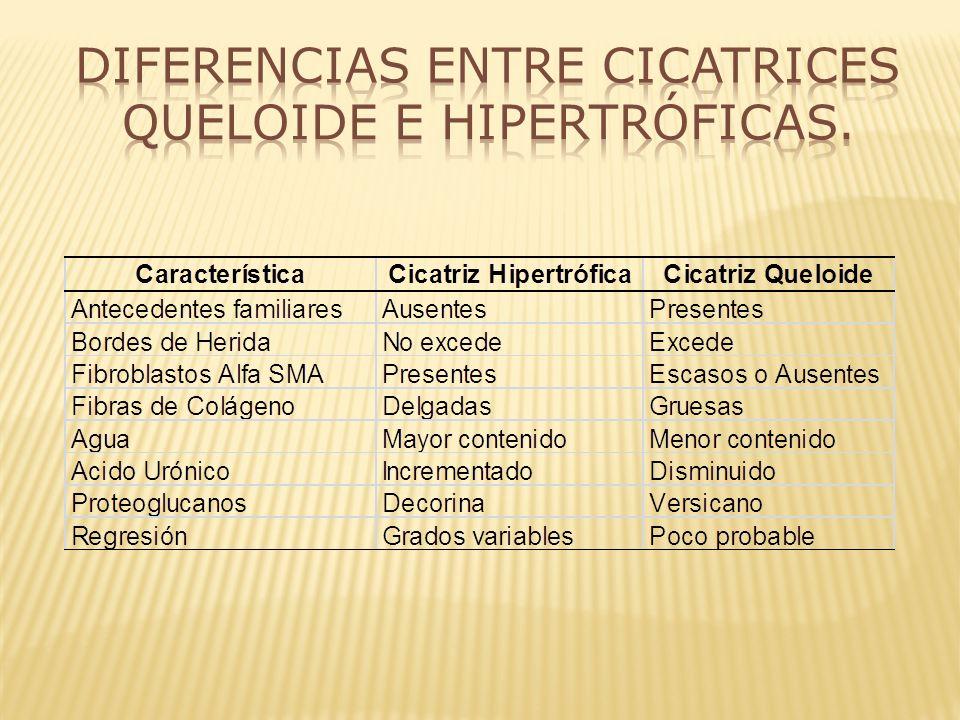 Diferencias entre Cicatrices Queloide e Hipertróficas.