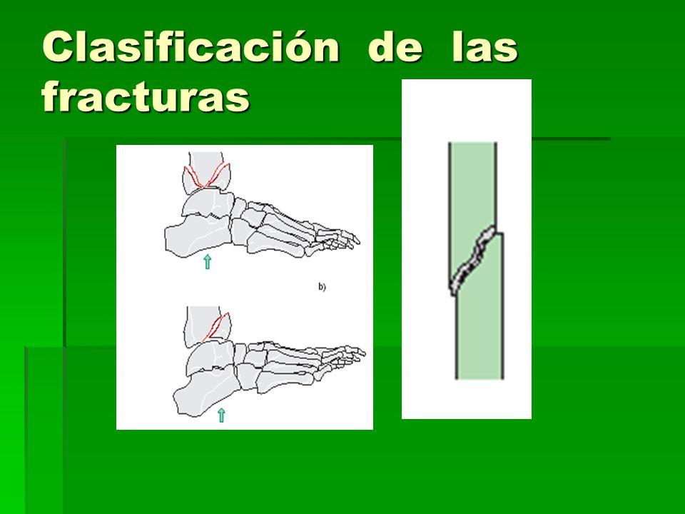 Clasificación de las fracturas