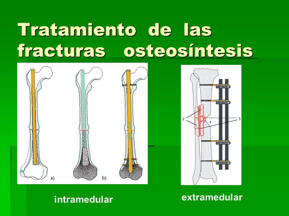 Tratamiento de las fracturas osteosíntesis