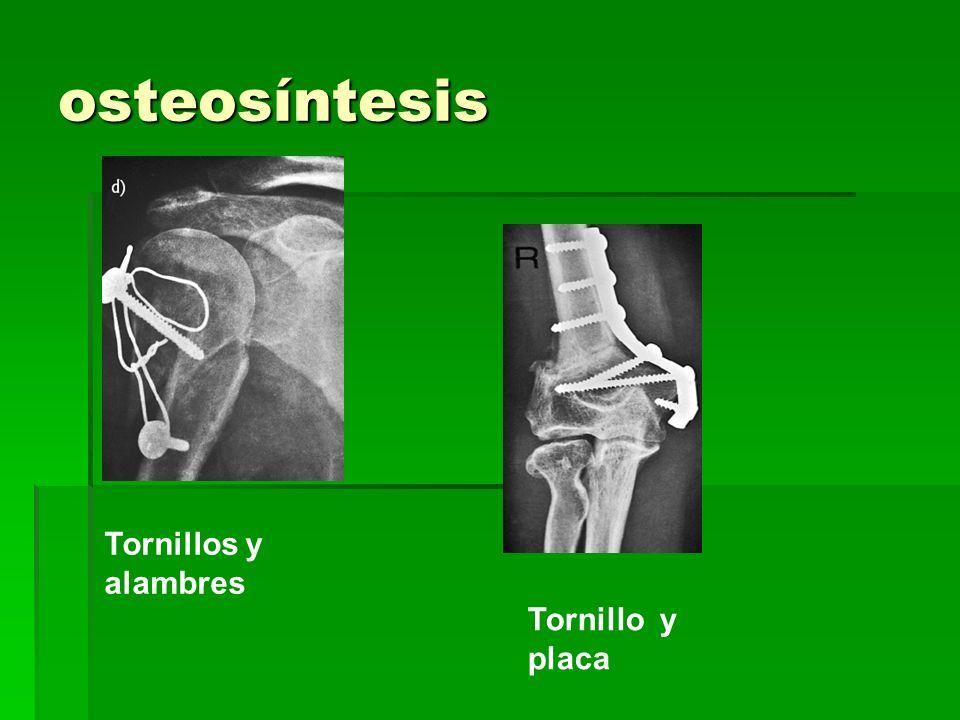 osteosíntesis Tornillos y alambres Tornillo y placa