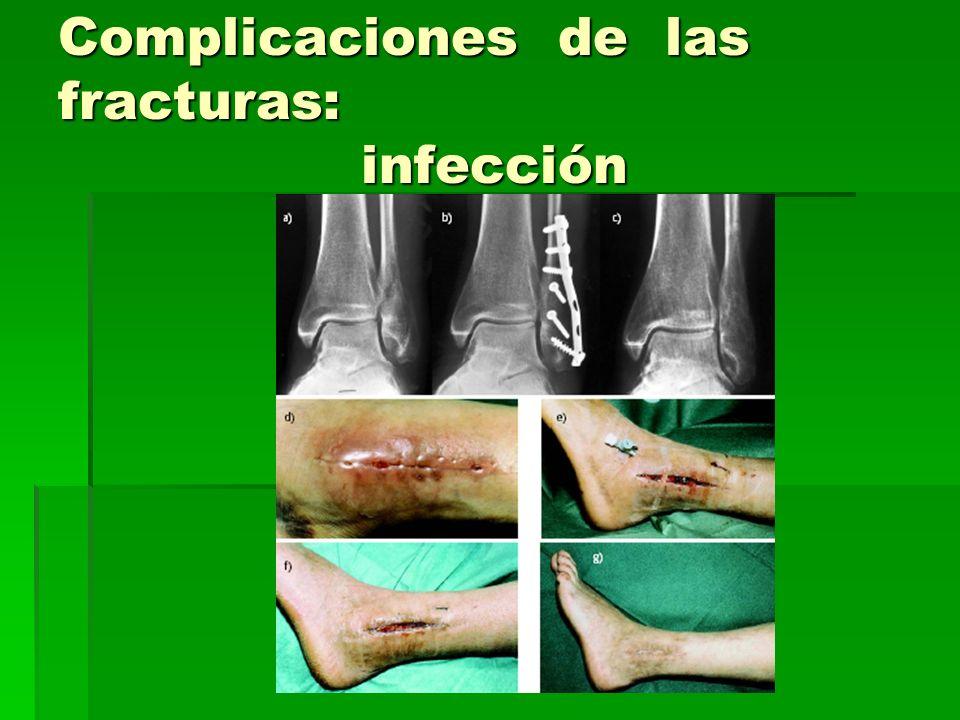 Complicaciones de las fracturas: infección