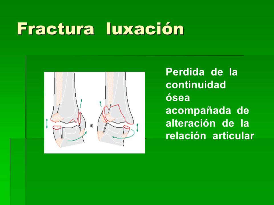 Fractura luxación Perdida de la continuidad ósea acompañada de alteración de la relación articular.