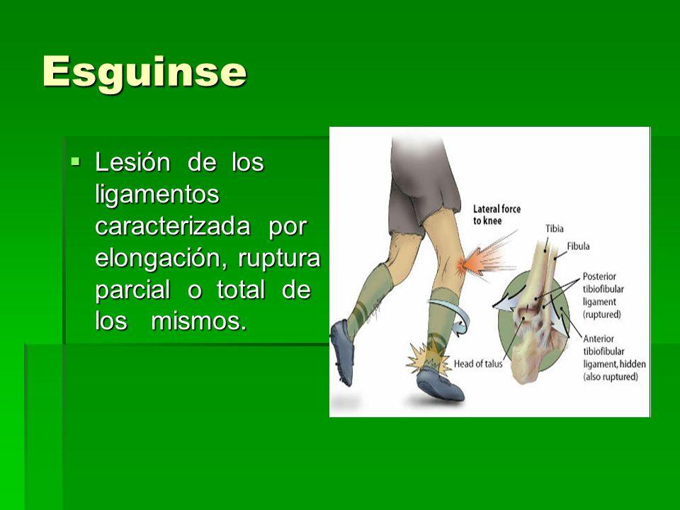 Esguinse Lesión de los ligamentos caracterizada por elongación, ruptura parcial o total de los mismos.