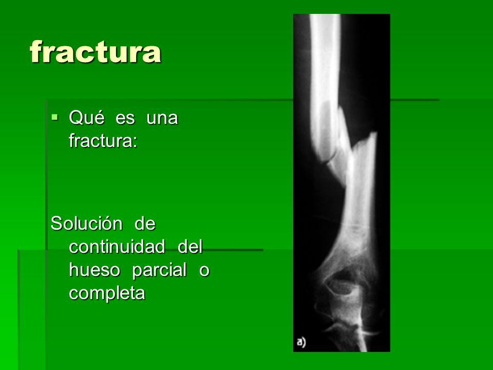 fractura Qué es una fractura:
