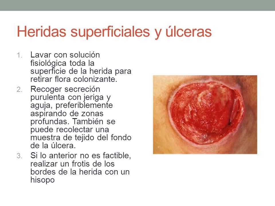 Heridas superficiales y úlceras