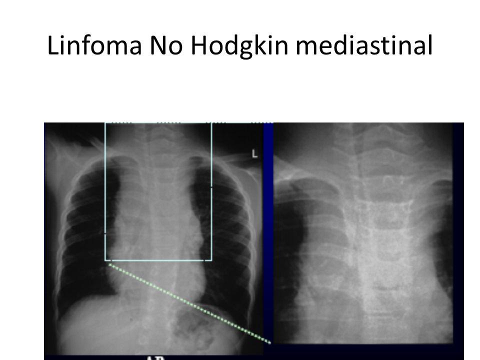 Linfoma No Hodgkin mediastinal