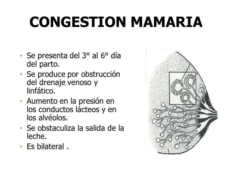 CONGESTION MAMARIA Se presenta del 3° al 6° día del parto.