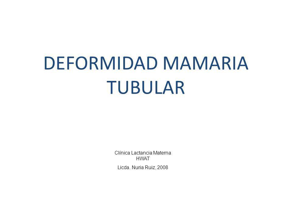 DEFORMIDAD MAMARIA TUBULAR