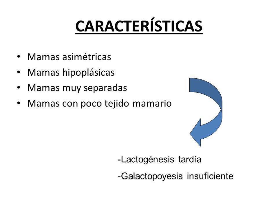 CARACTERÍSTICAS Mamas asimétricas Mamas hipoplásicas