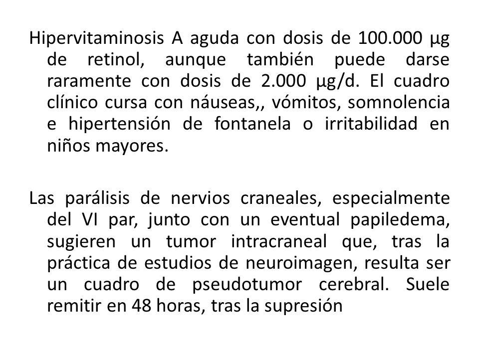 Hipervitaminosis A aguda con dosis de 100