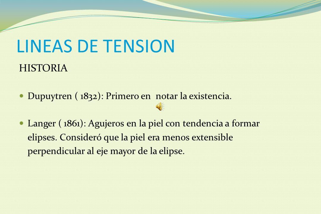 LINEAS DE TENSION HISTORIA