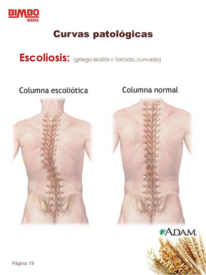 Escoliosis: (griego skoliós = torcido, curvado)