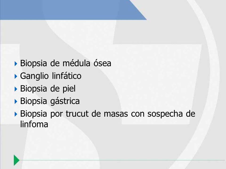 Biopsia de médula óseaGanglio linfático.Biopsia de piel.