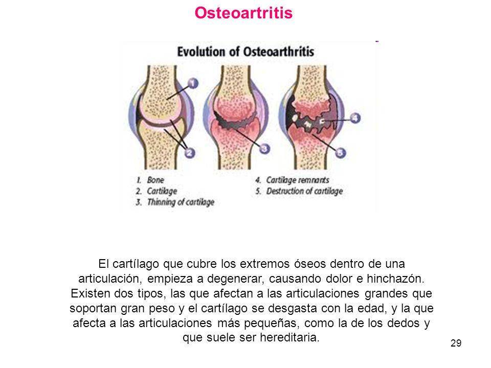 Osteoartritis