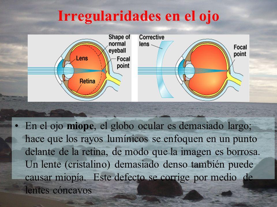 Irregularidades en el ojo