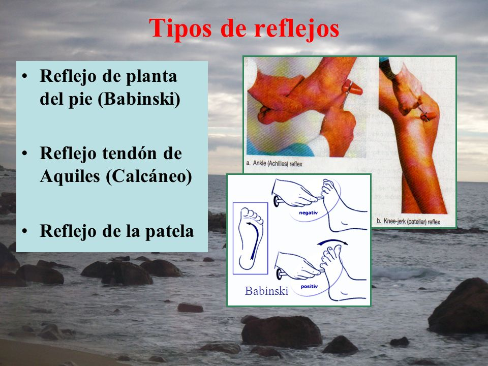 Tipos de reflejos Reflejo de planta del pie (Babinski)