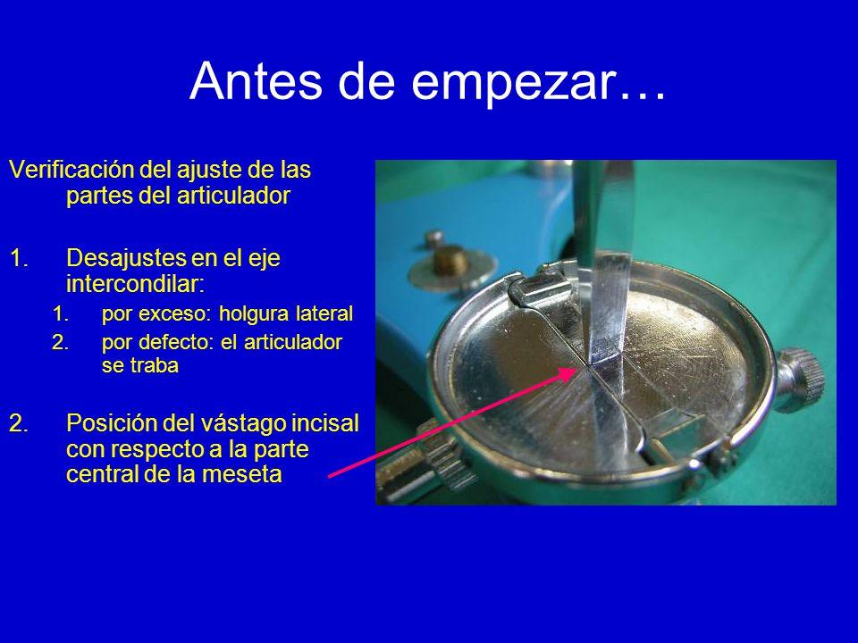 Antes de empezar… Verificación del ajuste de las partes del articulador. Desajustes en el eje intercondilar: