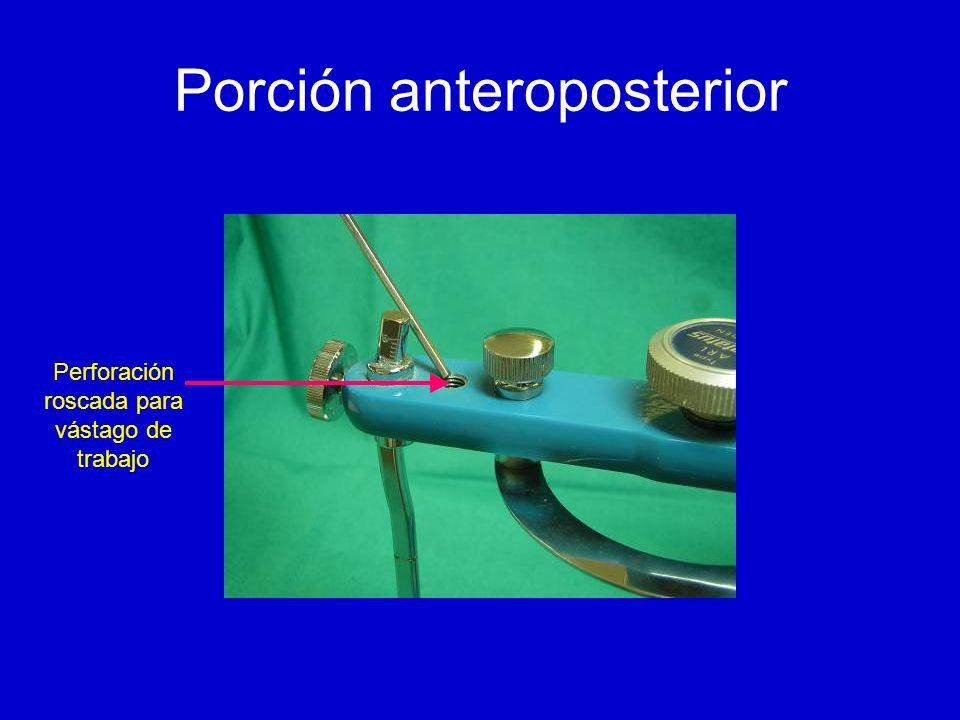 Porción anteroposterior