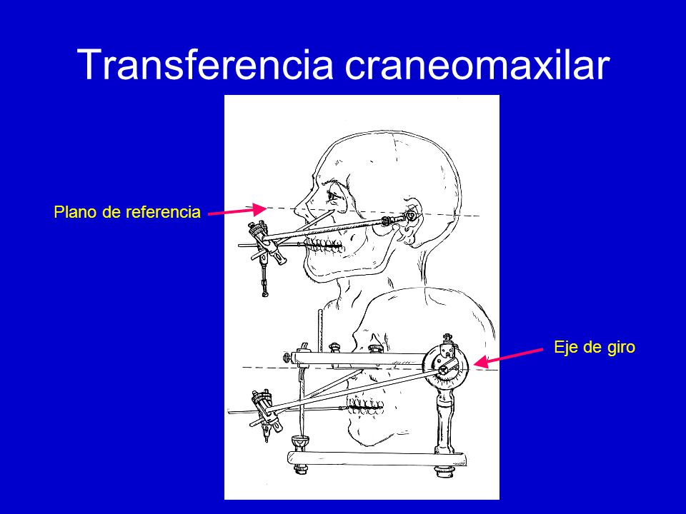 Transferencia craneomaxilar