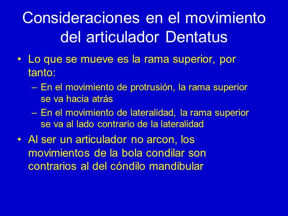 Consideraciones en el movimiento del articulador Dentatus