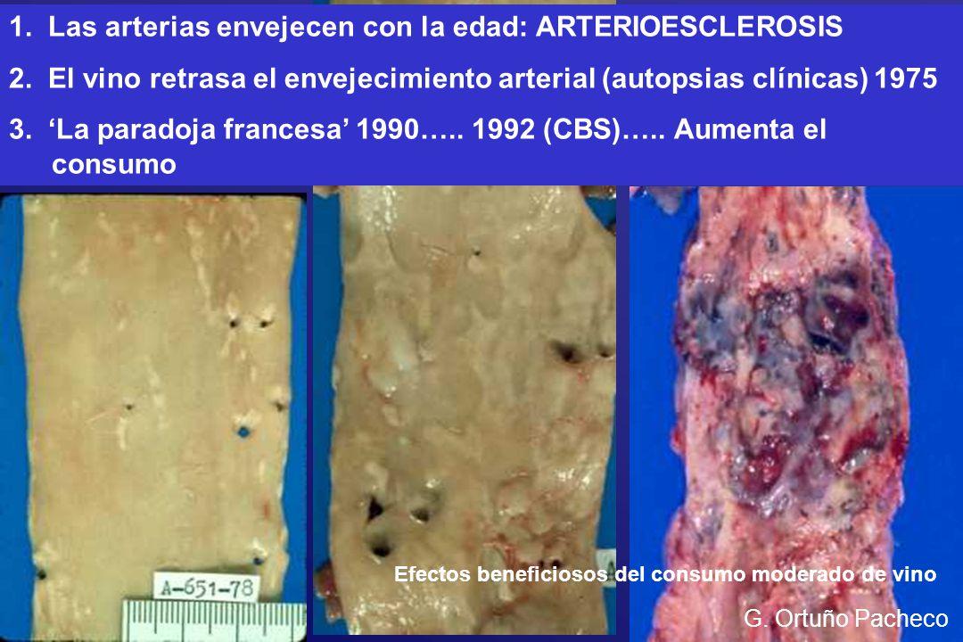 1. Las arterias envejecen con la edad: ARTERIOESCLEROSIS